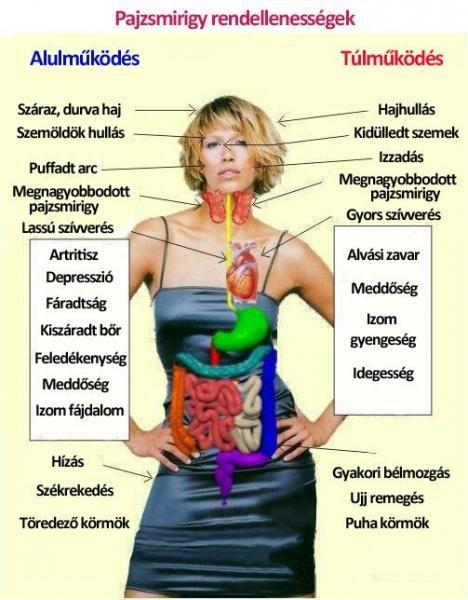 hyperthyreosis tünetei