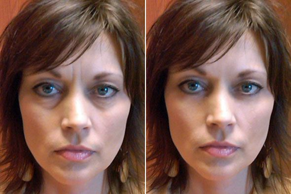 Natural Ways To Prevent Wrinkles Around The Eyes