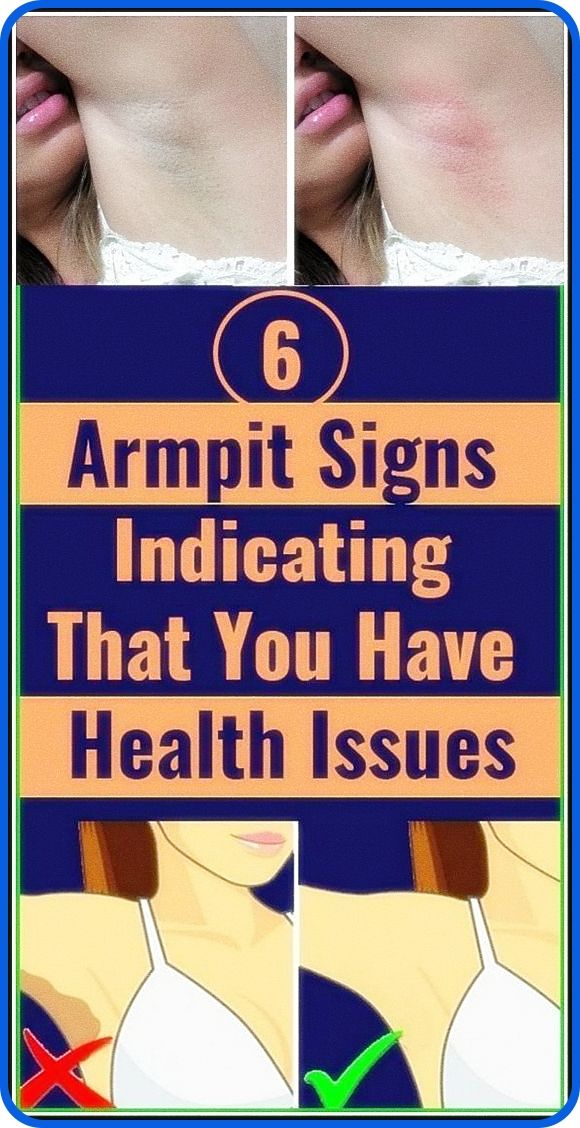 6 Armpit Signs Indicating That You Have Health Iss