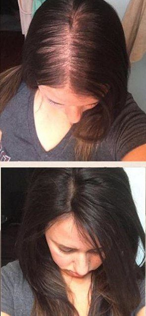 Hairstyles For Receding Hairline Female Dark Brown Hair Toppers For Women With Thinning Hair Or Hair Loss