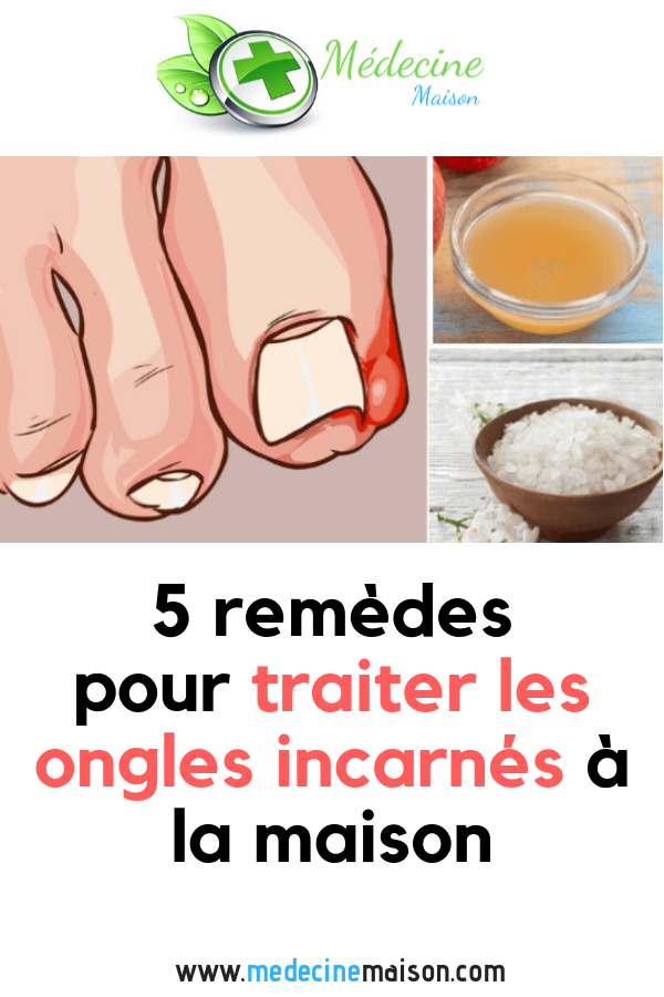 5 remèdes pour traiter les ongles incarnés à la maison - Home Medicine