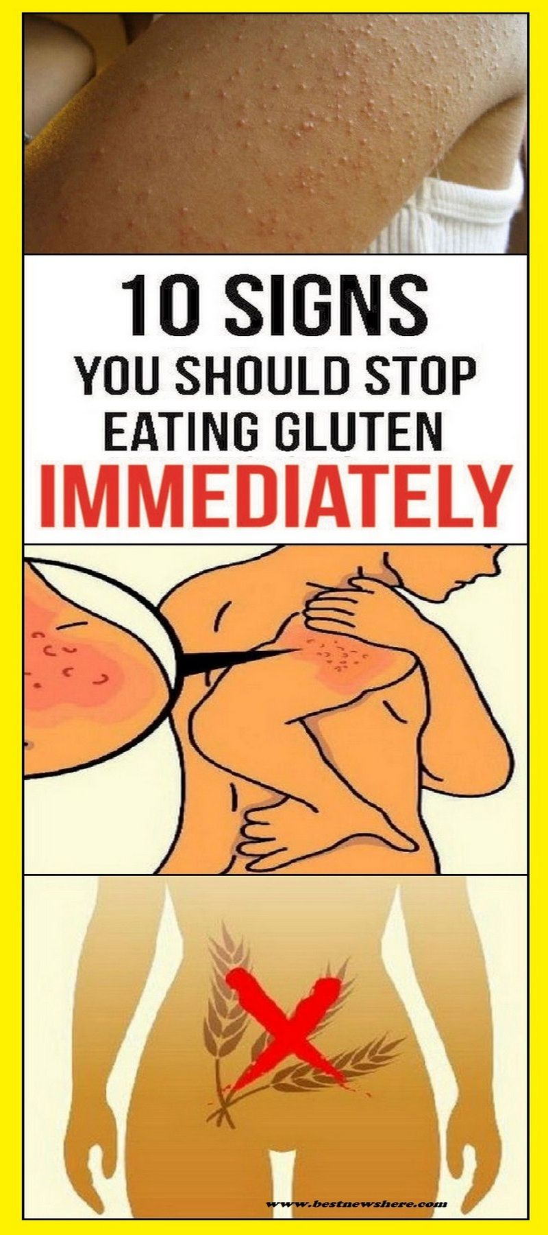 Nowadays, doctors people to use a glutenfree