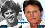 Bruce Jenner Plastic Surgery Before and After | Does Plastic Surgery Make Him Lo…
