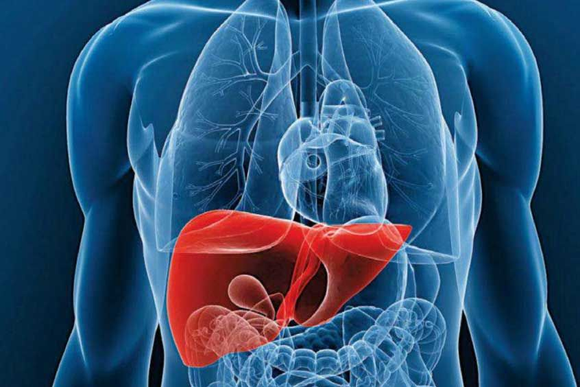 Tratamiento del hígado graso con Medicina Natural | HABITOS ...