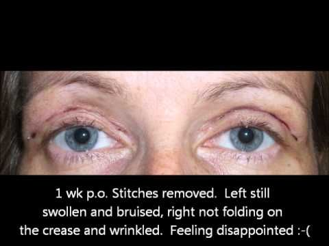 Lower Eyelid Surgery Recovery Time Photos