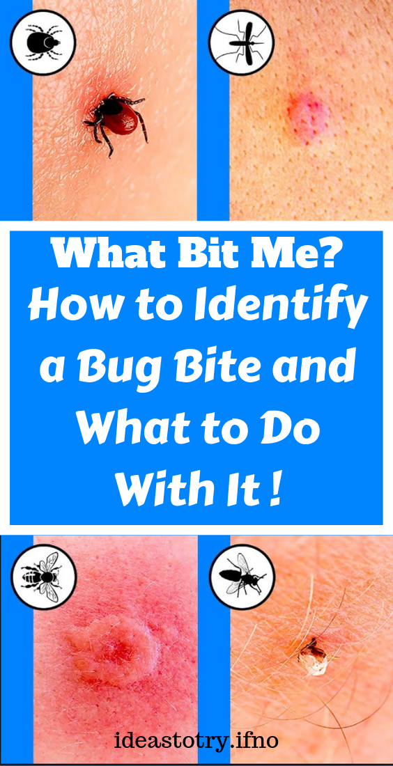 How to Identify a Bug Bite and What to Do With It ! See