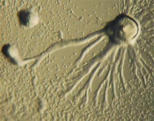Aggregating Dictyostelium discoideum (slime mold).