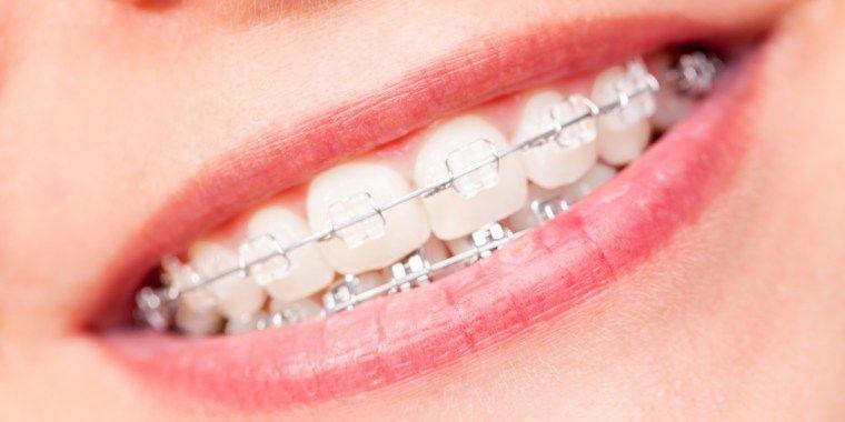 Dentist Open on Saturday Near Me | Dental braces ...