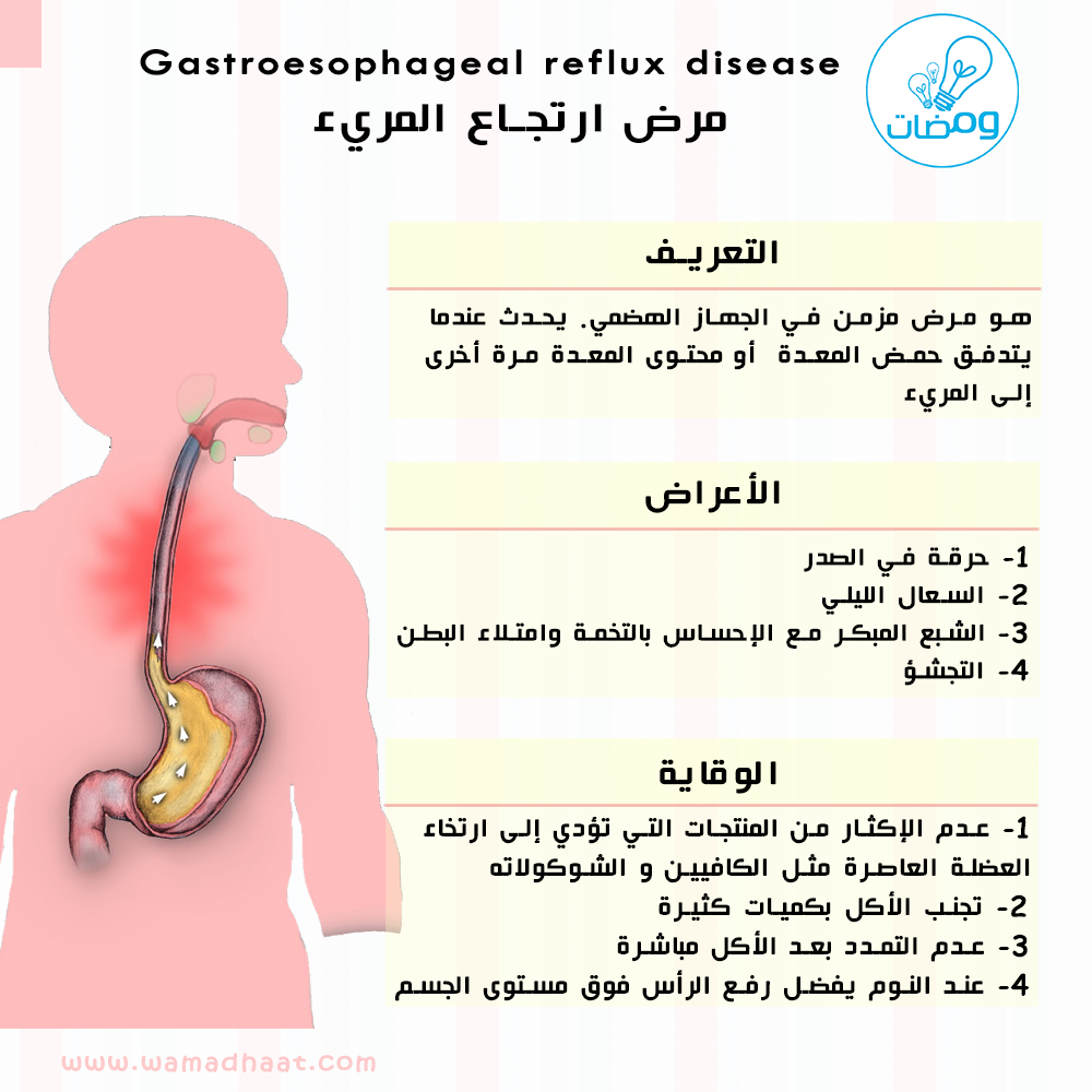 ارتجاع المري ما هي طريقة الوقاية المصدر كتاب الأمراض Goljan Pathology Mohammad Reflux Disease Gastroesophageal Reflux Disease Reflux