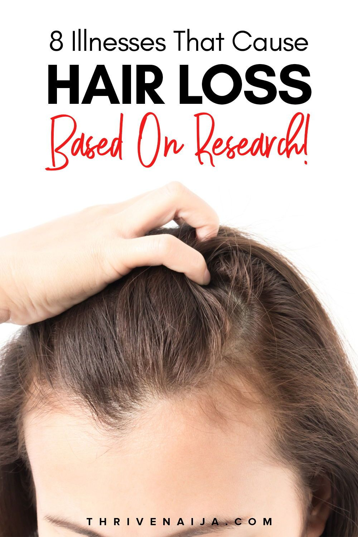 9 Illnesses That Cause Hair Loss, Based On Research   ThriveNaija ...