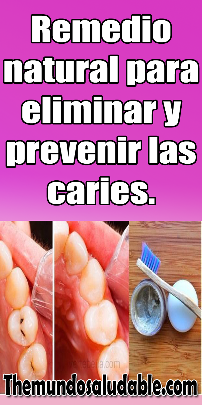 Remedio Natural Para Eliminar Y Prevenir Las Caries Remedios Naturales Caries Como Eliminar Las Caries