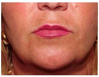 Pin by Gold Coast Plastic Surgery on Lip Augmentation | Lip