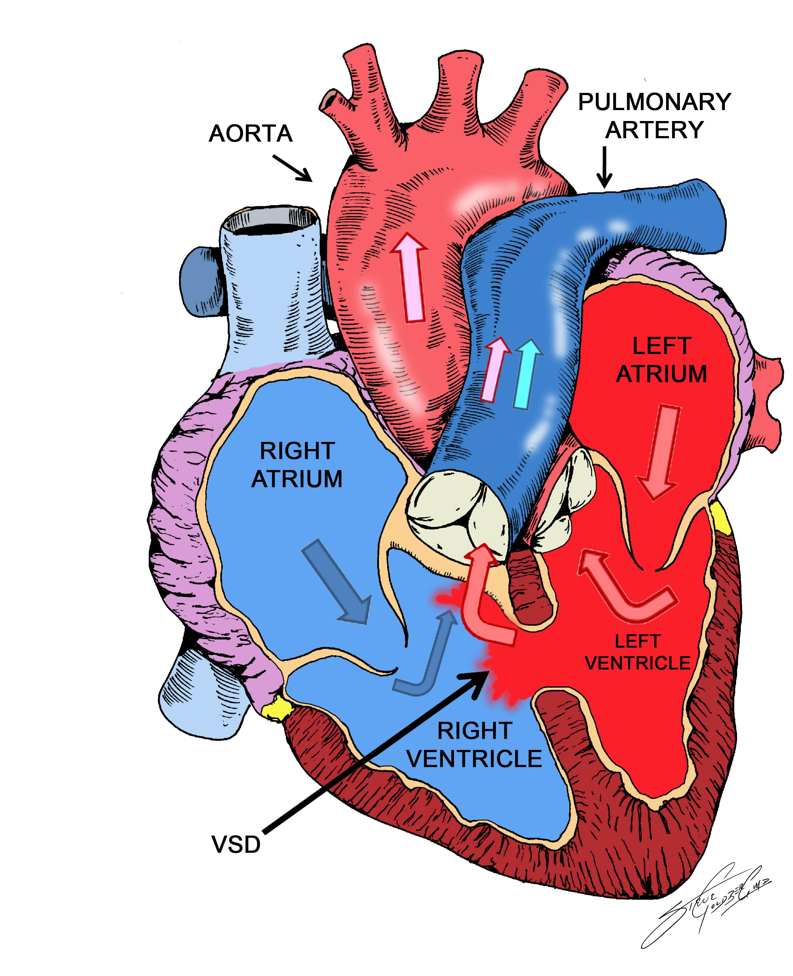ventricular septal defect Ventricular septal defects are rare congenital malformations of the heart that occur more frequently in males than females approximately 1 percent of newborns have a congenital heart defect.
