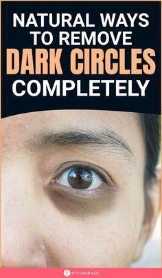 13 Ways To Get Rid of Dark Circles Under The Eyes   Remove ...