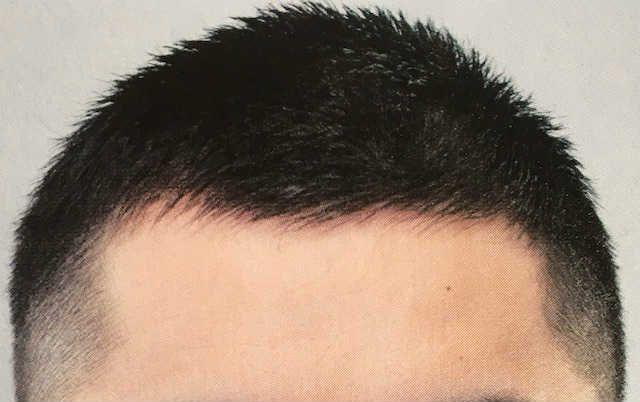 はげ 頭 髪型 頂部 【おすすめ】てっぺんはげ&つむじはげに似合う髪型14選!