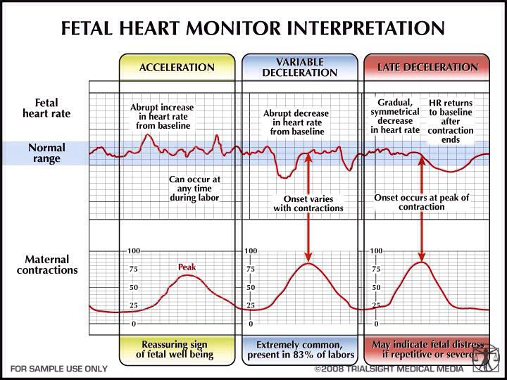 Fetal heart monitor interpretation Nursing Pinterest Monitor - heart rate chart template