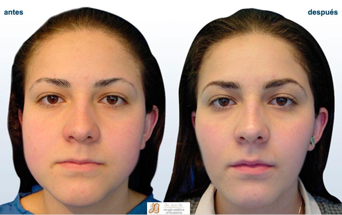 cirugia plastica de cara antes y despues de adelgazar