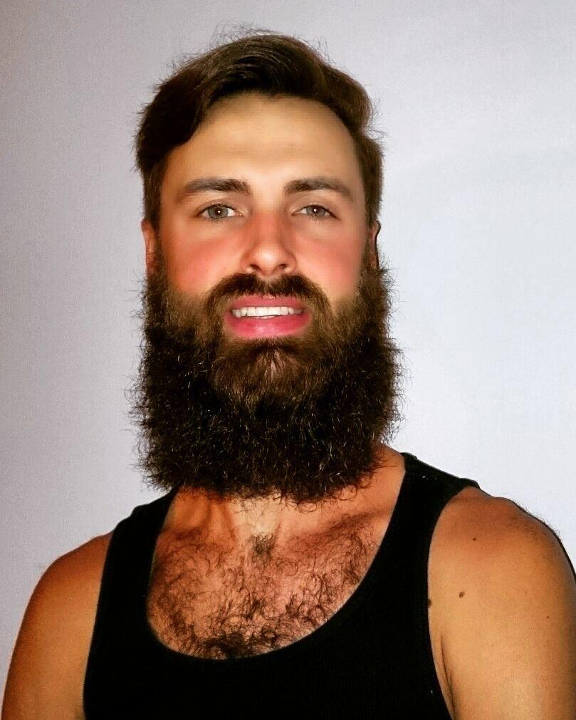 Cheek Progress 5 Weeks Minoxidil 9 Growth 4 Beard Powder Black Jamaican Castor Oil Bi Al