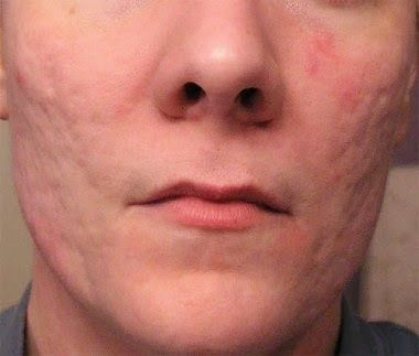How To Get Rid Of Deep Acne Scars?Cystic Acne can leave deep and ...