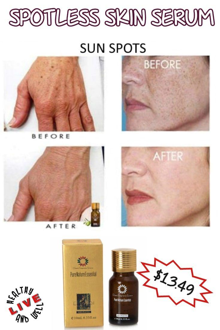 Spotless Skin Serum | Skin serum, Dry skin on face, Skin ...