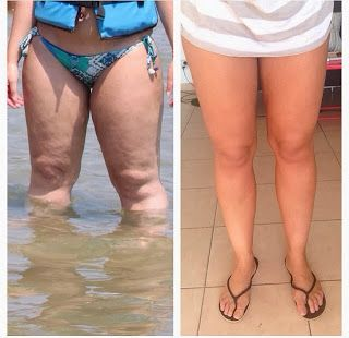 cellulite pictures before and after weight loss