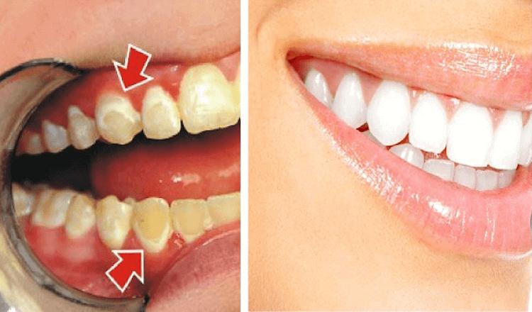 Вот как снять налет с зубов всего за 5 минут! Проще
