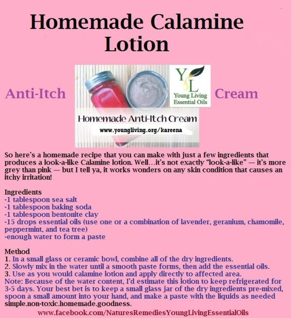 Homemade Calamine Lotion With Essential Oils Learn More And Order Here Heavenscentoils4u Yle Calamine Lotion Essential Oils For Migraines Essential Oils