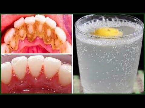 Truque Rapido E Eficaz Para Remover O Tartaro E Deixar Os Dentes