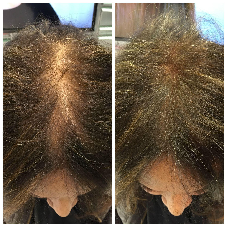 Viviscal Hair Filler Fibers demos at ABS2015 ABSUpdates