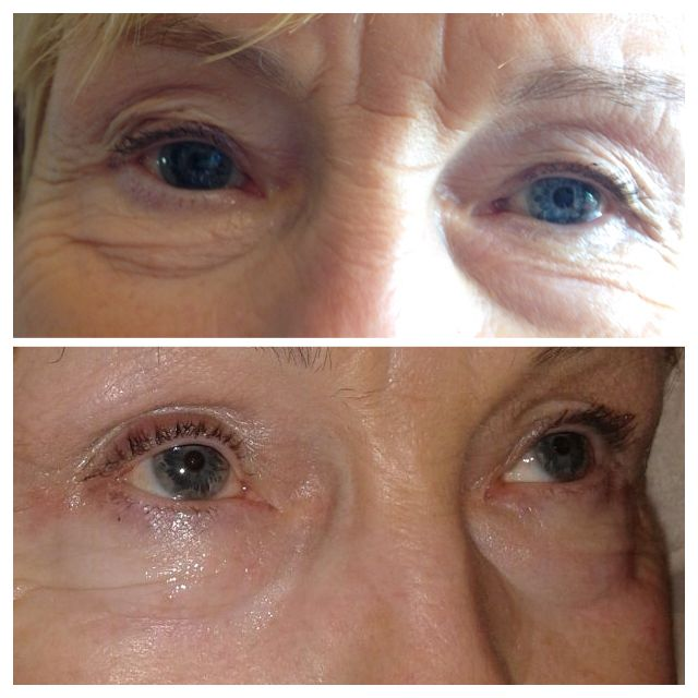 Radio Frequency Skin Tightening After Only 6 Sessions