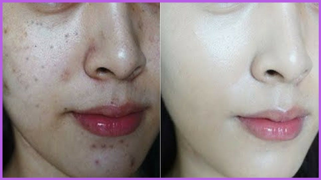How to Brighten Dull Skin Reduce Acne Scars Uneven Skin Tone