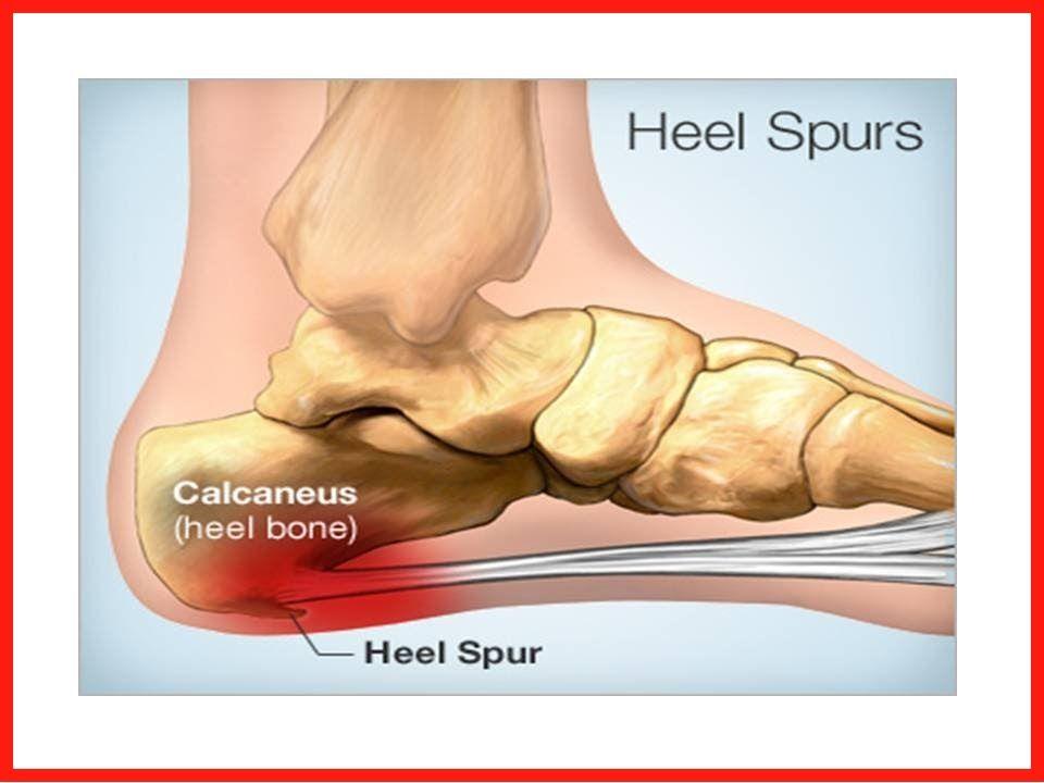 Bone Spur On Top Of Foot Natural Remedies