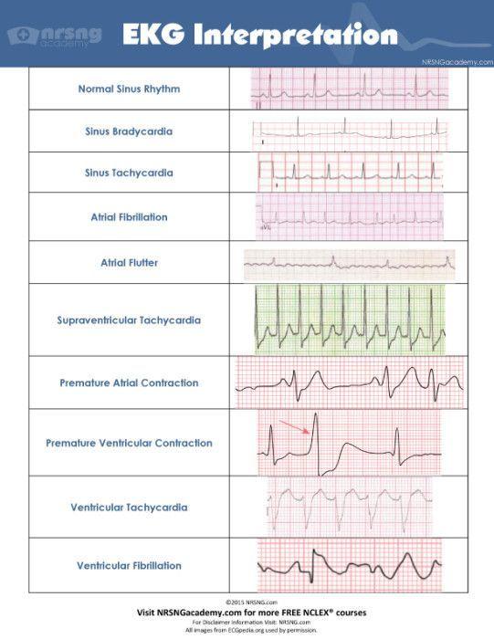 Interpret EKGs Strips Like A Boss Ekg Interpretation For