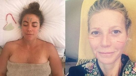 'I tried cosmetic acupuncture and it's better than botox ...