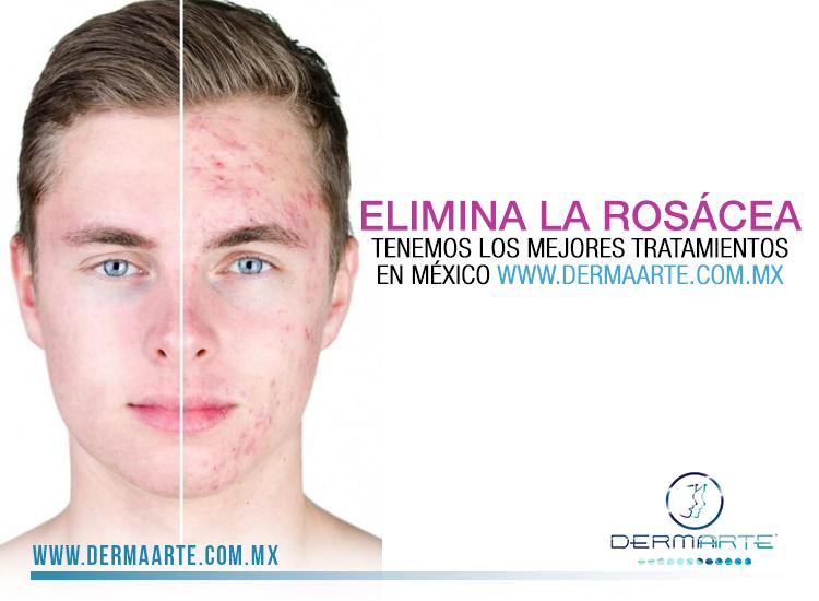 Con la llegada del frío y los cambios de temperatura tu rosácea puede empeorar, en #Dermaarte cuidamos de ti y tenemos el tratamiento indicado, que eliminará de tu piel este problema. Conoce más: www.dermaarte.com.mx/s…/enfermedades-de-la-piel/ros%C3%A1cea #Dermaarte #Dermatologia #Rosacea #Mexico #Clinicas #Tratamientos