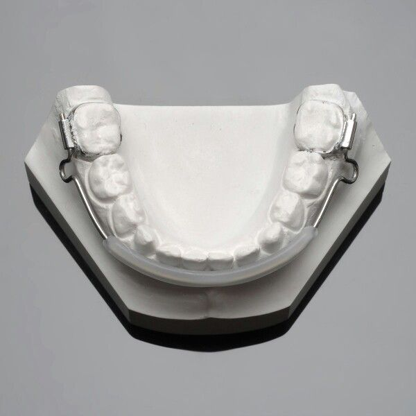 Lip bumper use to move molars distallly and make incisors protrusion to resolve crowding of the lower teeth in younger children.     Worn 24 hrs/day including while eats. 12 to 18 months treatment plan