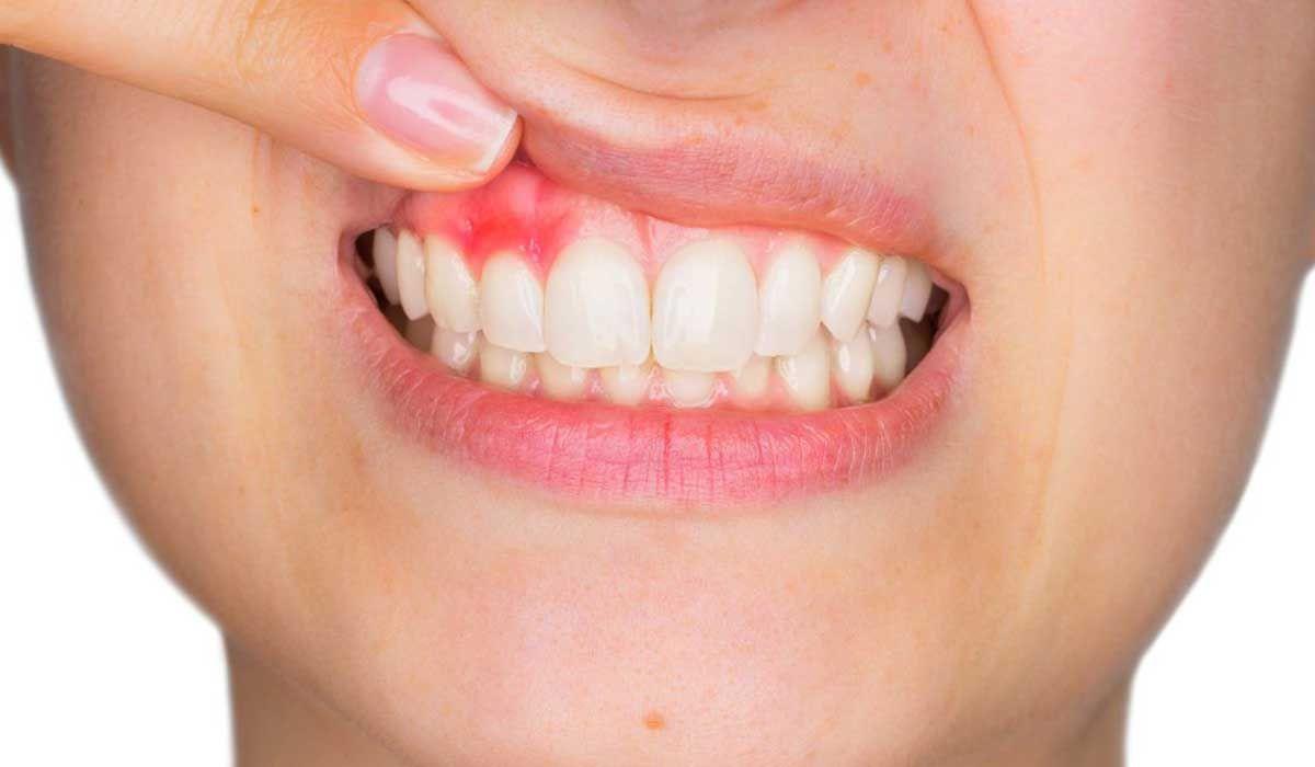 ما هو علاج التهاب لثة الأسنان Gum Disease Treatment Periodontal Disease Treatment Receding Gums