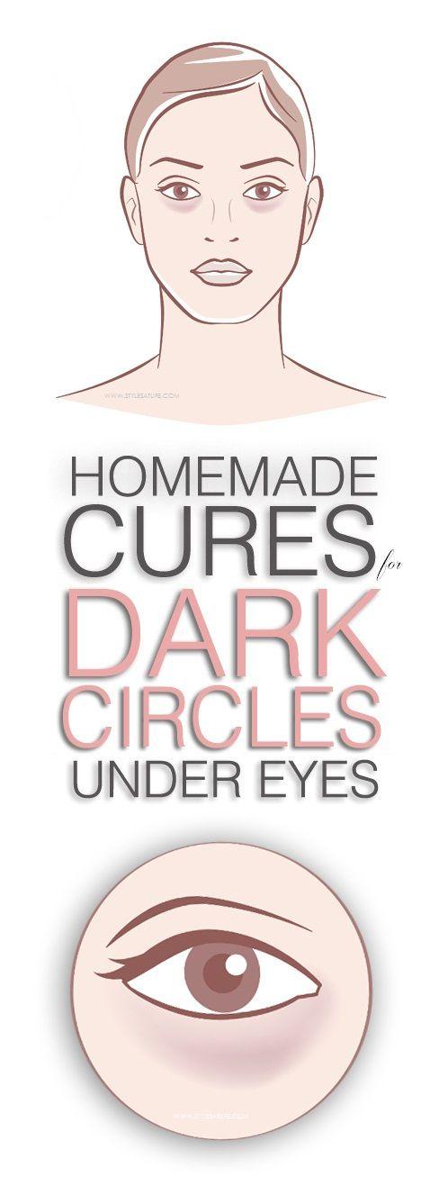 20 Effective Home Remedies to Remove Dark Circles Under ...