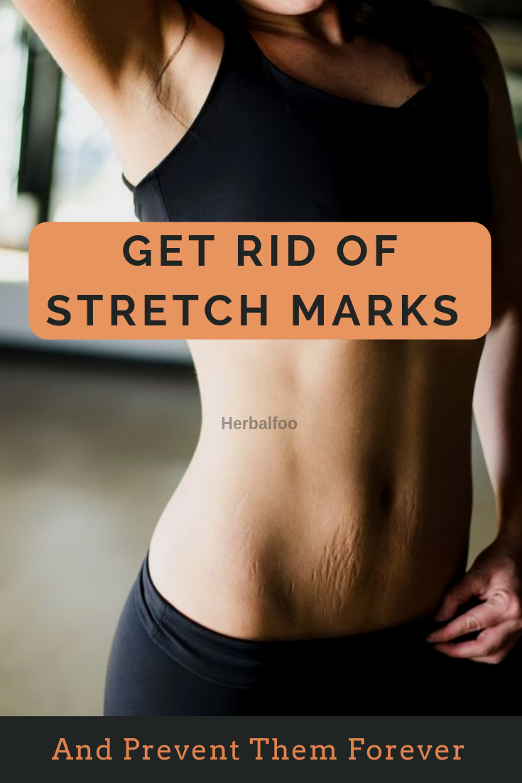 How To Get Rid Of Stretch Marks And Prevent Them Forever ...