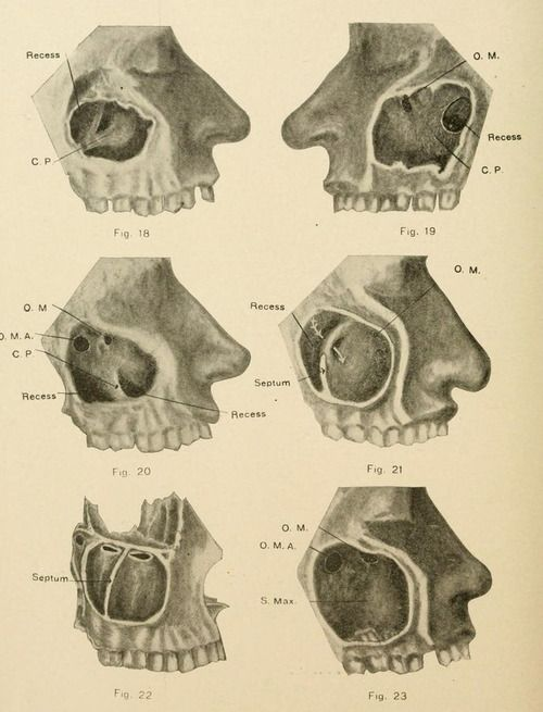 Fig 18 23 Recesses In The Sinus Cavity The American Journal Of