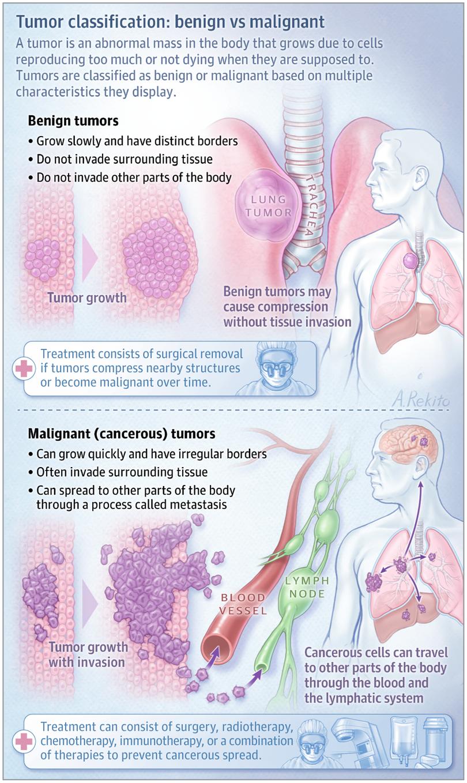 Cancer vs benign tumor, Benign cancer and malignant tumor