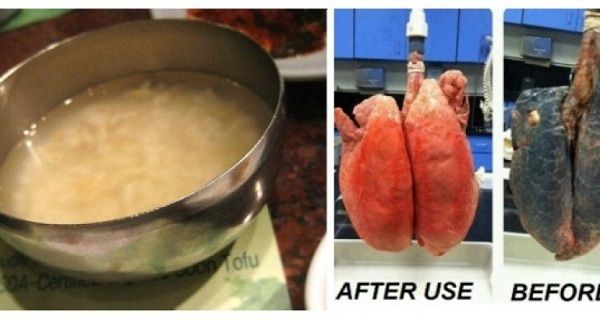This recipe will easily clear your lungs in 3 days even if you this recipe will easily clear your lungs in 3 days even if you smoke more forumfinder Gallery