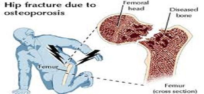 Treat Hip Fracture From Osteoporrosis With Total Hip Replacement