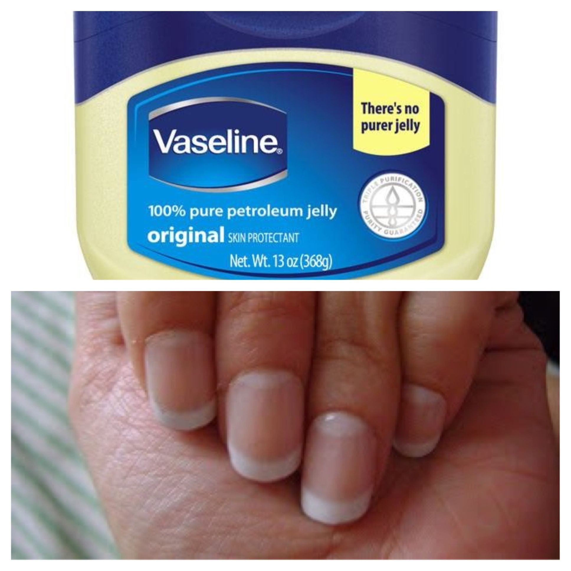 Best natural way to get long thick nails? Apply Vaseline to your ...