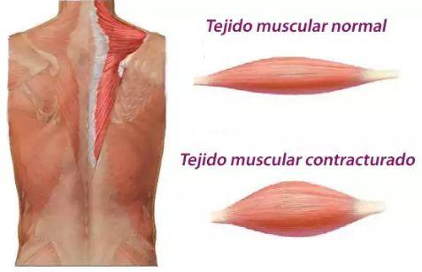 a que se deben las contracturas musculares