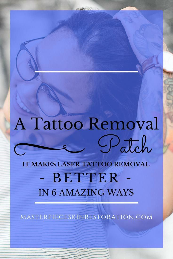 how long does it take to remove a tattoo with laser