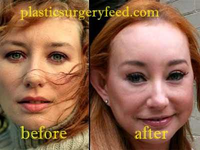 Tori Amos Plastic Surgery Has Been Ruined Everything Her