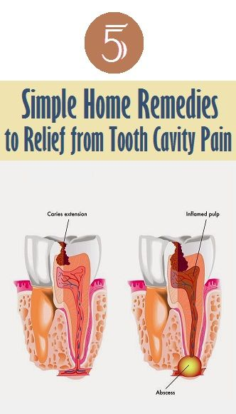 How To Get Rid Of Cavities Healthy Heart Body And Diet