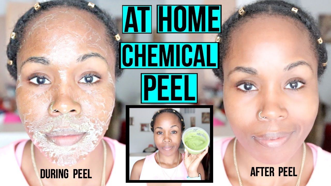 Chem peel facial at home