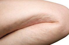 Ejercicios sencillos para reducir la celulitis Una de las pesadillas de las mujeres, sin dudas, es la celulitis. Esos pozos que se forman sobre todo en las piernas, los muslos y los glúteos y que no nos dejan disfrutar del verano, del traje de baño, de la intimidad o de una falda corta.